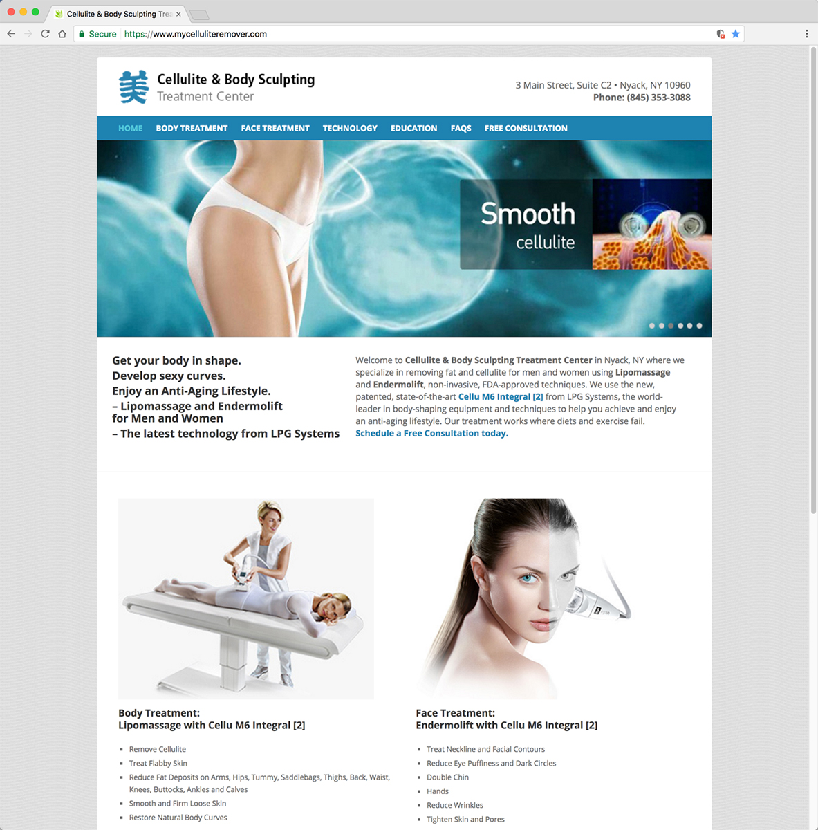 Cellulite and Body Sculpting Website