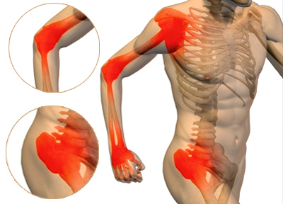 joint pain, pain in joints