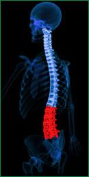 Lumbar Spondylitis