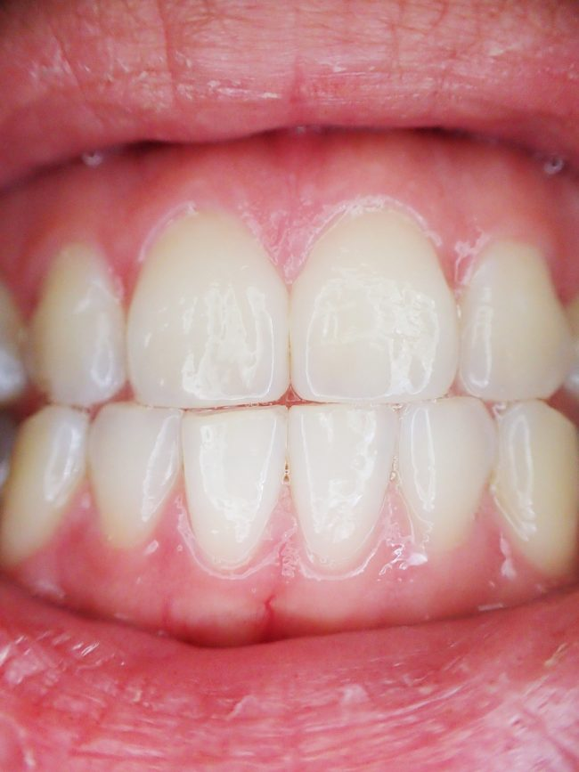 Leave bleeding gums behind with Corsodyl Toothpaste