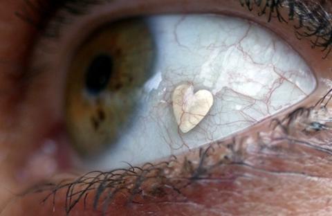 Implante de joyas en ojos