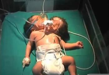 nace bebé de dos cabezas en la india