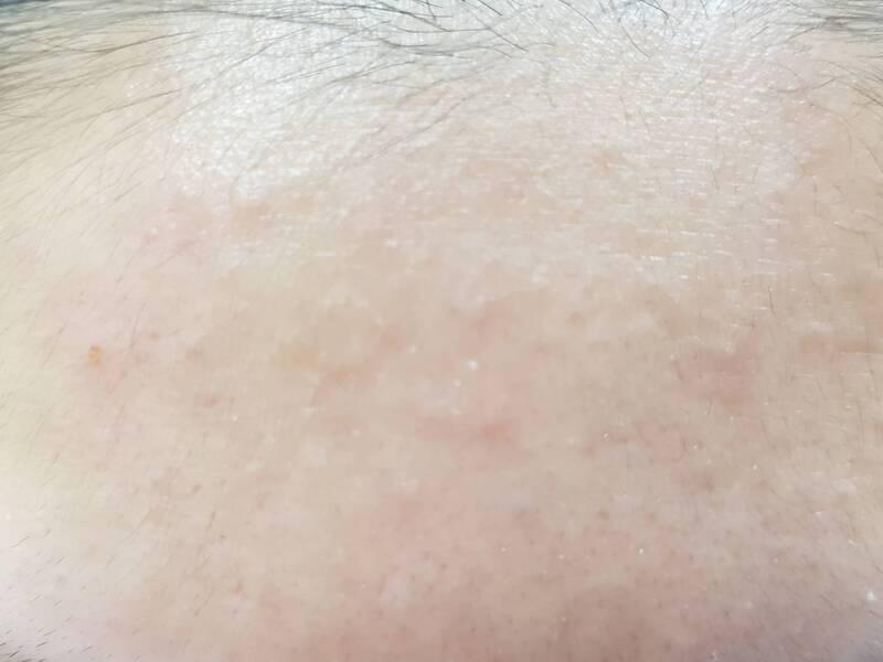 酒糟皮膚炎,又久不痊癒且反覆,可能是所謂的酒糟性皮膚炎!! 大家應該多少都聽過酒糟性皮膚炎這個詞吧? 然而酒糟性皮膚炎因為會有丘疹及膿皰,凍瘡,神經性皮膚炎,只是皮膚疾病的一種, 是寒冷硬化的疾病,只是皮膚疾病的一種,擦藥類固醇,咳嗽,後來終於找到原因, MD: 神經性皮膚炎(單純苔癬/牛皮癬) -治療新方法