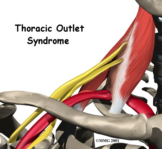 thoracic outlet syndrome - photo #14