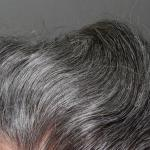 Researchers Find The Cells At The Root Of Balding & Gray Hair