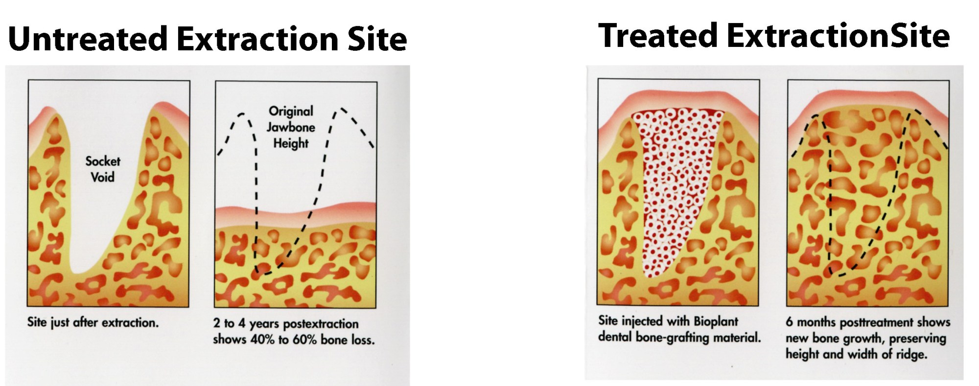 hight resolution of prevention of alveolar bone loss and maintenance of alveolar bone structure are mandatory for longterm stability of conventional or implant supported