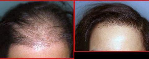 Trasplanti di capelli: cosa aspettarsi