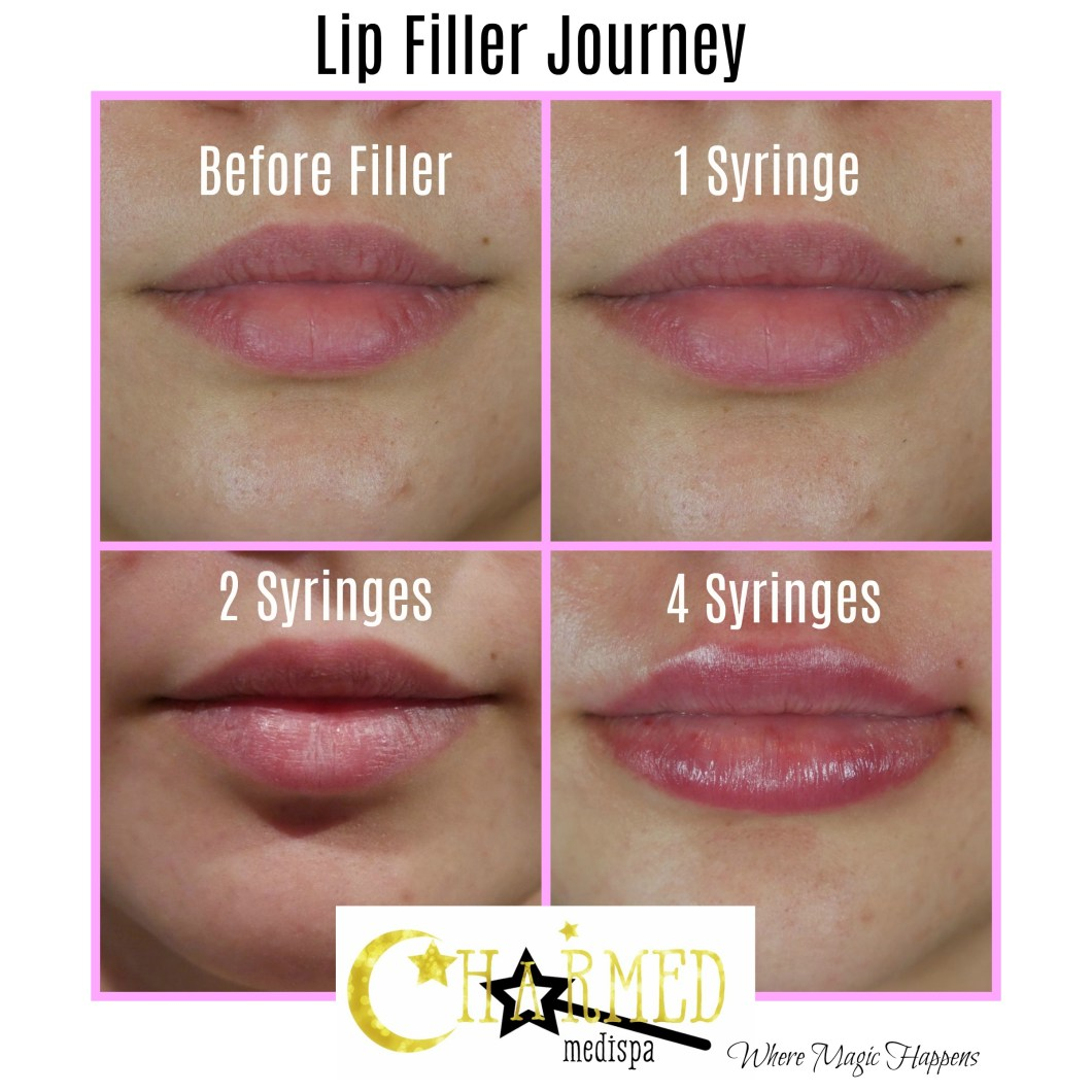 bruising after juvederm lip injections | Amtmakeup co