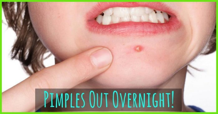 How to get rid of pimple asap
