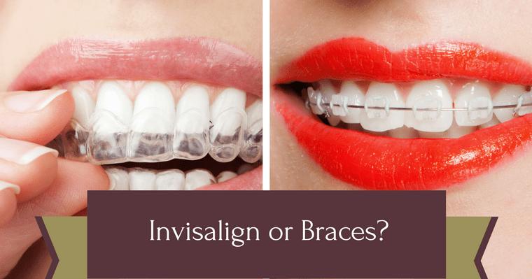 [INFOGRAPHIC] Should I Choose Invisalign or Braces? | Dr ...