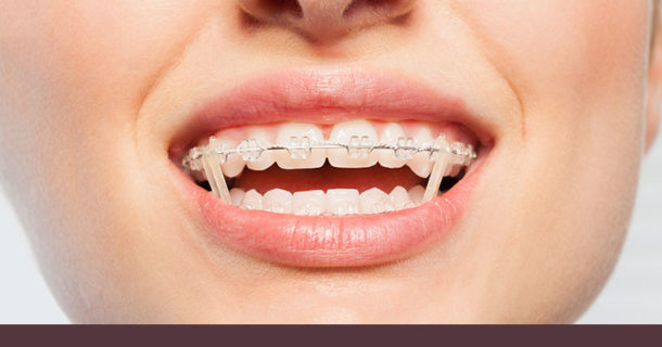 Welcome To Our Blog   Chatham Orthodontics   ☎ 973-701-2200