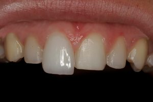 We are the experts of Porcelain veneers here in Chatswood