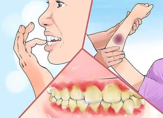 Os sintomas são expressos em sangramento nas gengivas, cáries, cabelo cada vez mais fino e fadiga crônica