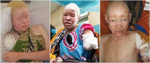 Albinos são cruelmente mutilados