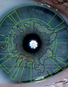 Iridology mucus congestion iris reading analysis eye also surprising findings the picture of health rh cheap revolution