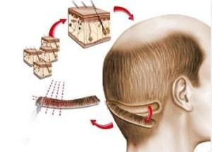FUT FUSS hair transplants