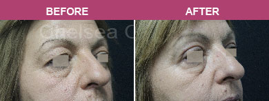 Eyelid Surgery Before and After Melbourne Blepharoplasty