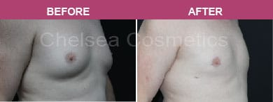 Gynecomastia Surgery - Man Boobs Removal Before and After Melbourne