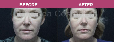 Ultherapy Face Lift before and after melbourne