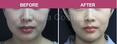 Ultherapy non surgical face lift before and after melbourne