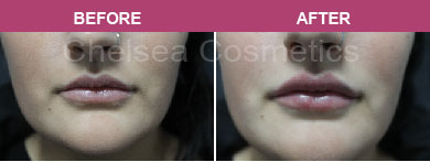 lips fillers before and after melbourne