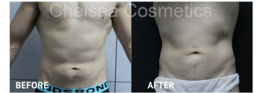 Cosmetic Surgery Melbourne
