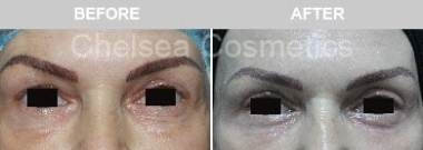 upper eyelid surgery melbourne before and after