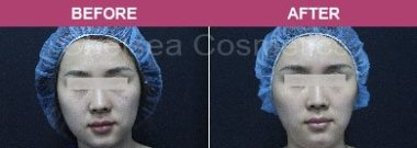 Face Stem Cell before and after melbourne 2