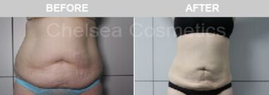 Abdomen liposuction melbourne review before and after