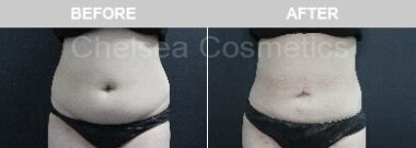 tummy laser liposuction melbourne before and after results