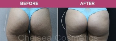 Butt Stemcells Before and after