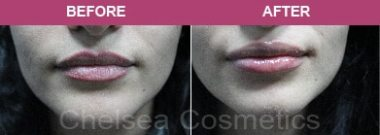 Lip Filler Before and after