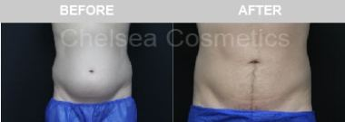 Abdomen Liposuction For Men Before and After