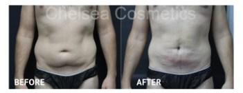 Hips & Waist Men's Liposuction Melbourne Before and After