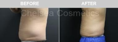 male liposuction before and after photos