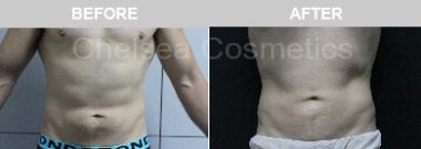 male liposuction melbourne before and after
