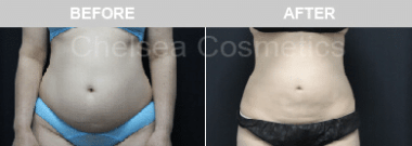 stomach liposuction melbourne