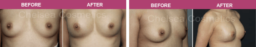 fat transfer surgery before and after