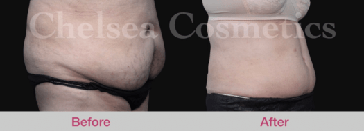 mega liposuction before and after
