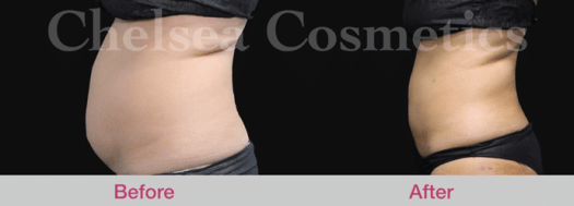 mega liposuction melbourne before and after