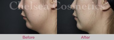 chin fillers melbourne