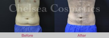 male stomach liposuction melbourne