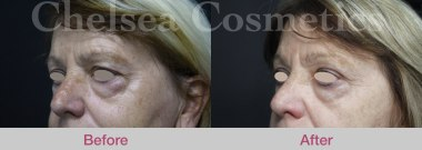 plasma treatment for face