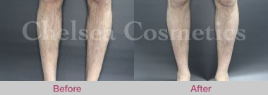 leg stem cell treatment melbourne