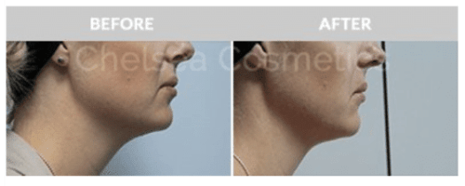 face lipo before after