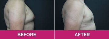 Gynaecomastia before after