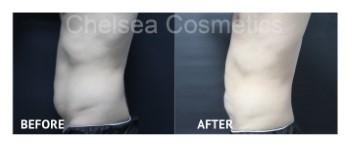 mens liposuction
