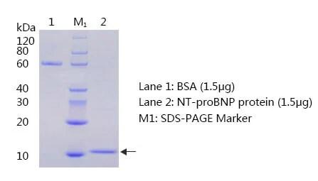 抗NT-ProBNP(腦鈉肽前體CAS 124584-08-3)抗體 化學與生物製品數據庫