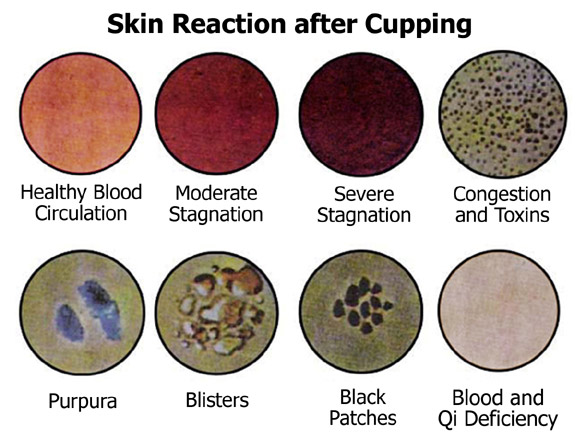 Skin-reaction
