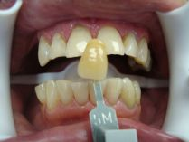Teeth Whitening Toronto 3D Dentistry Patient After